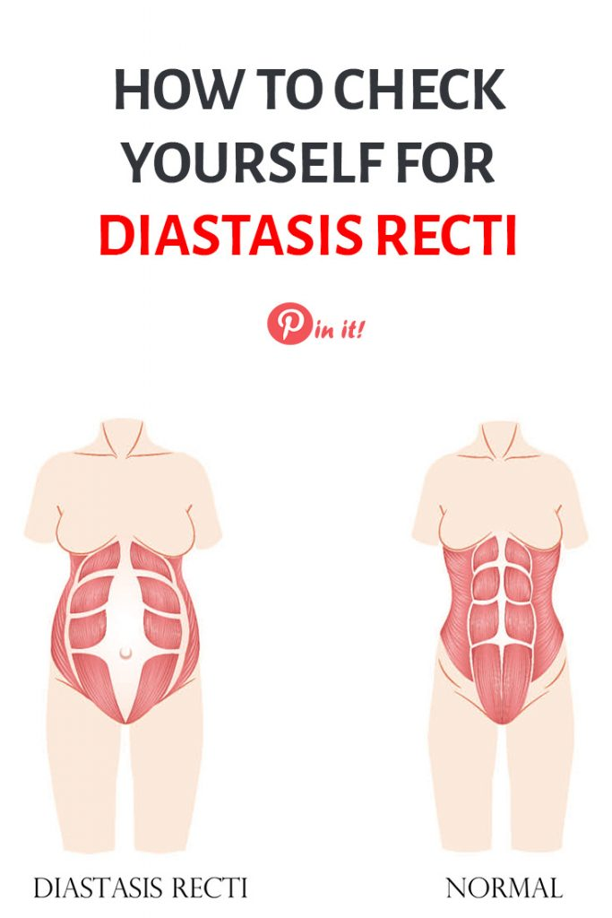 How to check yourself for diastasis recti. A guide through postpartum exercises that heal diastasis recti and rebuild core muscles. Postpartum weight loss tips for moms. #pregnancytips #breastfeedingweighloss